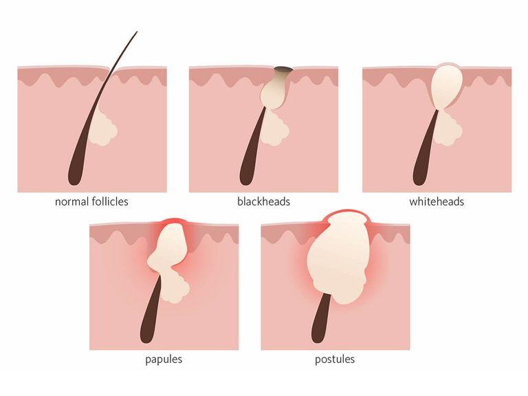 Hormonaal acne